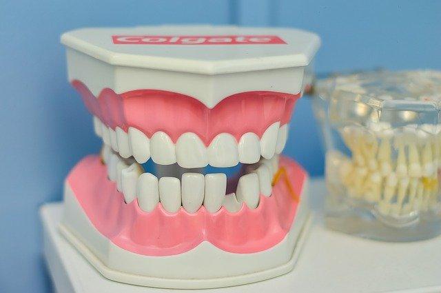 Zahnzusatzversicherung Schweiz